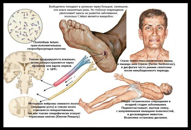 О симптомах, признаках и лечении столбняка у человека