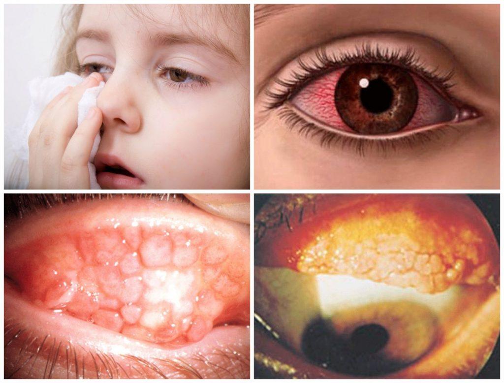 Чем лечить конъюнктивит: симптомы, фото, лечение в домашних условиях у взрослых