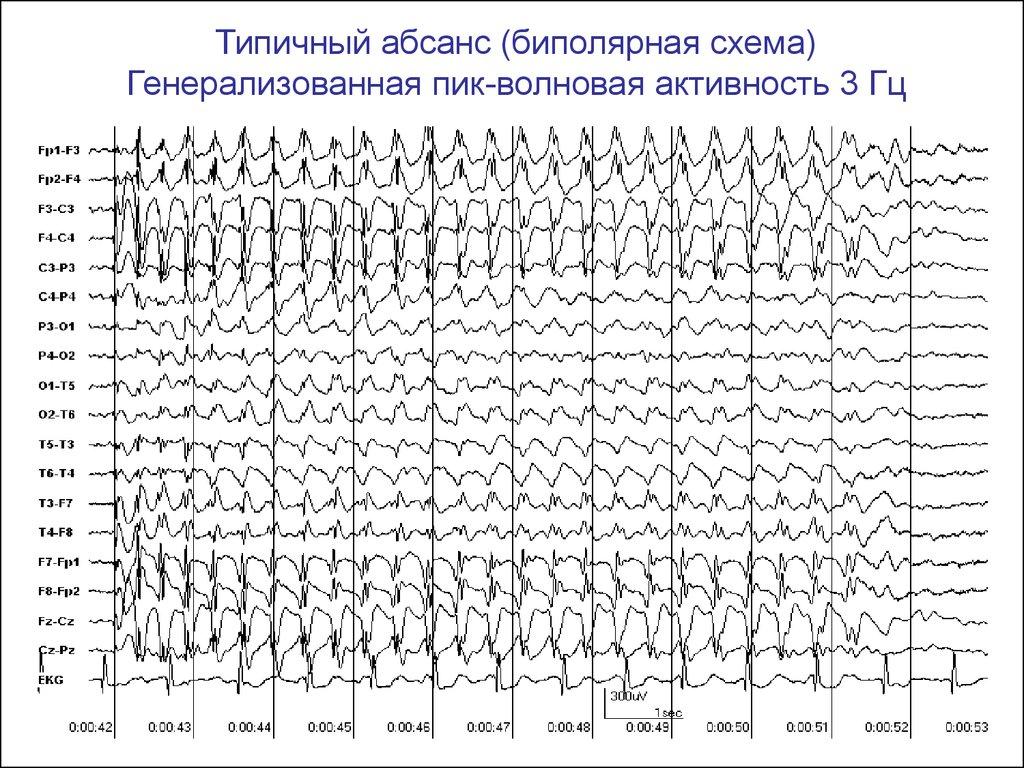 Ээг - что это такое за исследование. что показывает электроэнцефалография головы и как расшифровать результаты