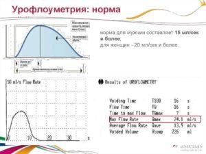 Урофлоуметрия: как проводится и какие показатели в норме