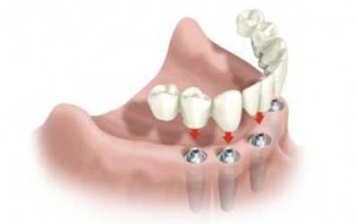 Сравнение материалов для изготовления зубных имплантов