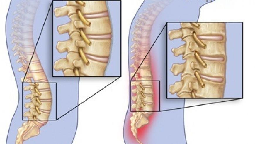 Спондилоартроз пояснично крестцового отдела позвоночника: лечение, уколы