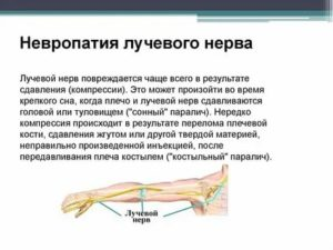 Периферическая нейропатия: симптомы, причины, лечение