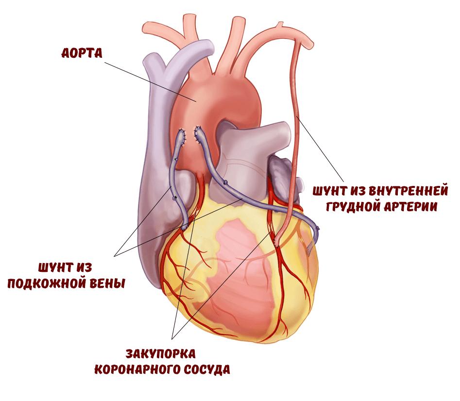 Стентирование и шунтирование сердца: сколько живут после операции, реабилитация после - medside.ru