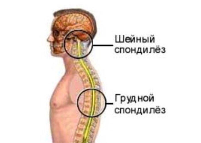 Спондилез шейного отдела позвоночника - симптомы, лечение и профилактика