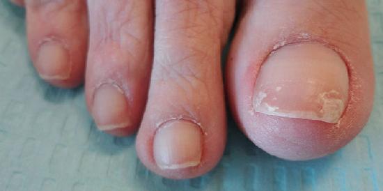 Мацерация кожи - это что такое в медицине? описание, причины проявления и методы лечения