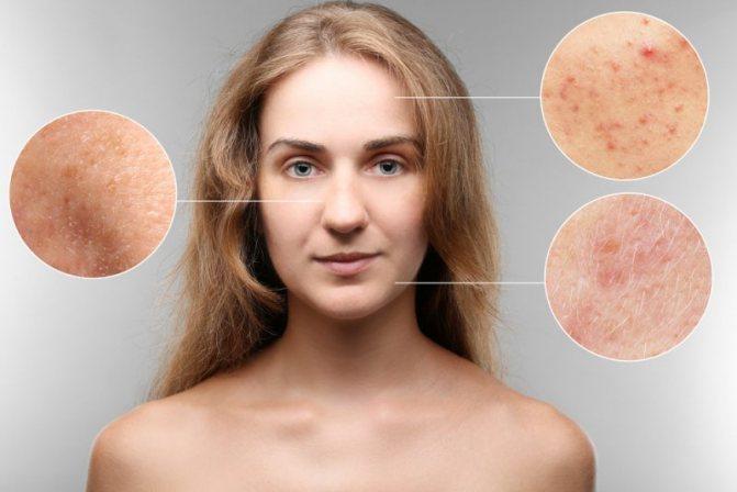 Олигоменорея первичная и вторичная - лечение, причины, симптомы