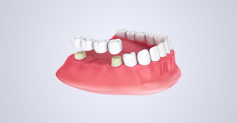 Виды съемных протезов зубов, стоимость при полном и частичном отсутствии зубов
