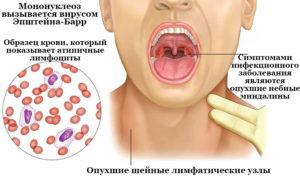 Вирус эпштейна-барр (вэб). симптоматика, диагностика, лечение у детей и взрослых