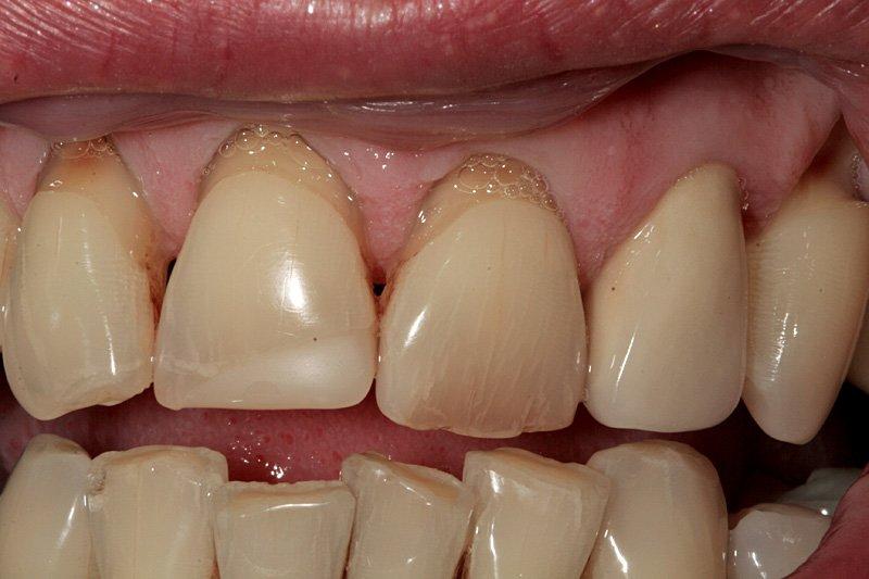 Виды зубного камня, причины появления, лечение