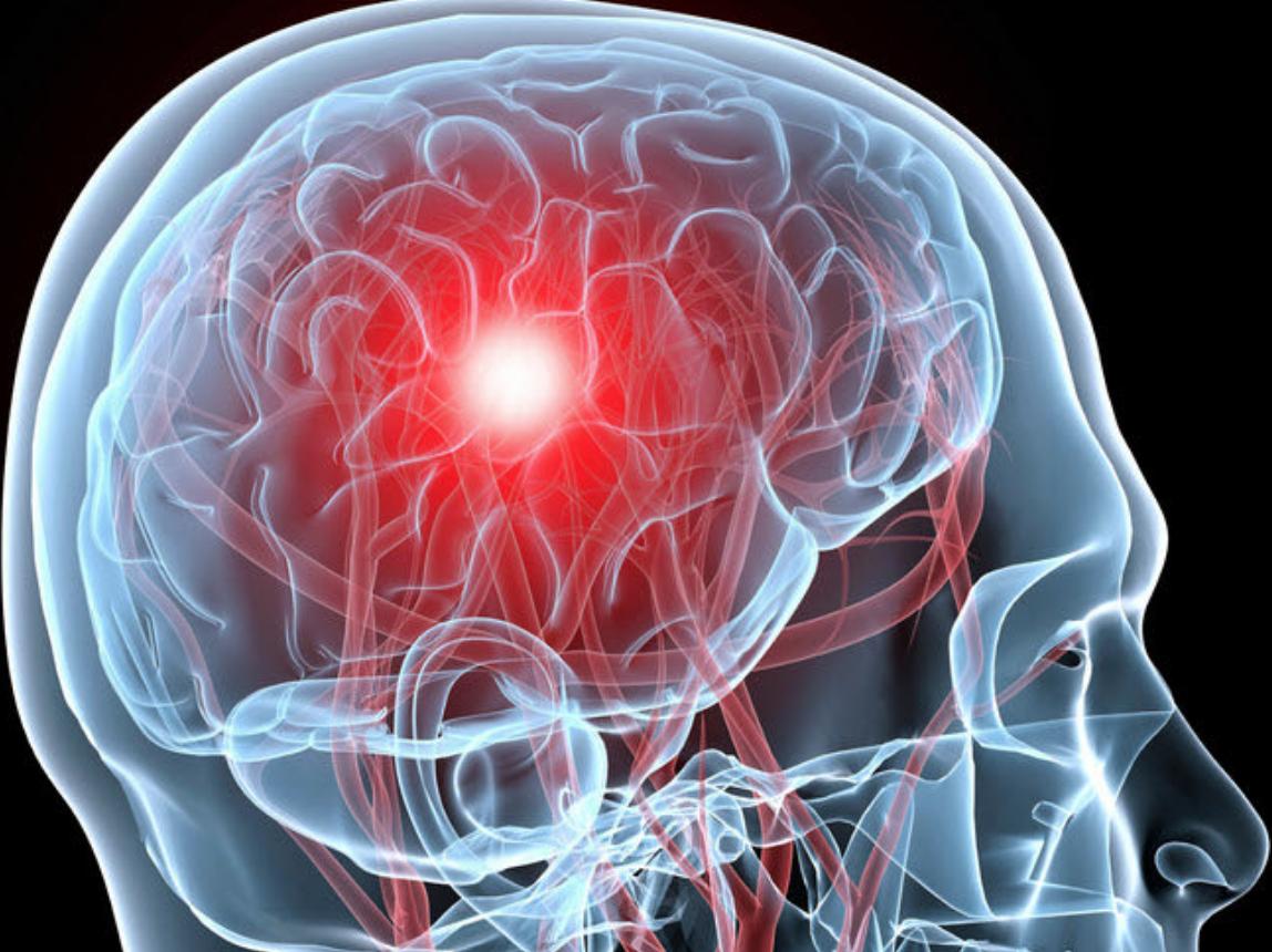 Цереброваскулярная болезнь — все, что нужно знать о недуге