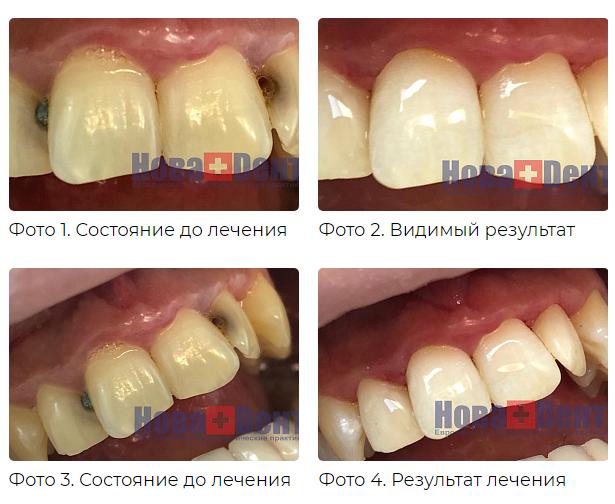 Пломба (стоматология) — википедия. что такое пломба (стоматология)