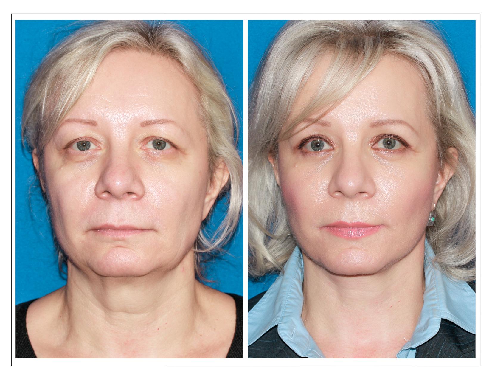 Рф-лифтинг - противопоказания и негативные последствия через несколько лет, побочные действия после процедуры для лица