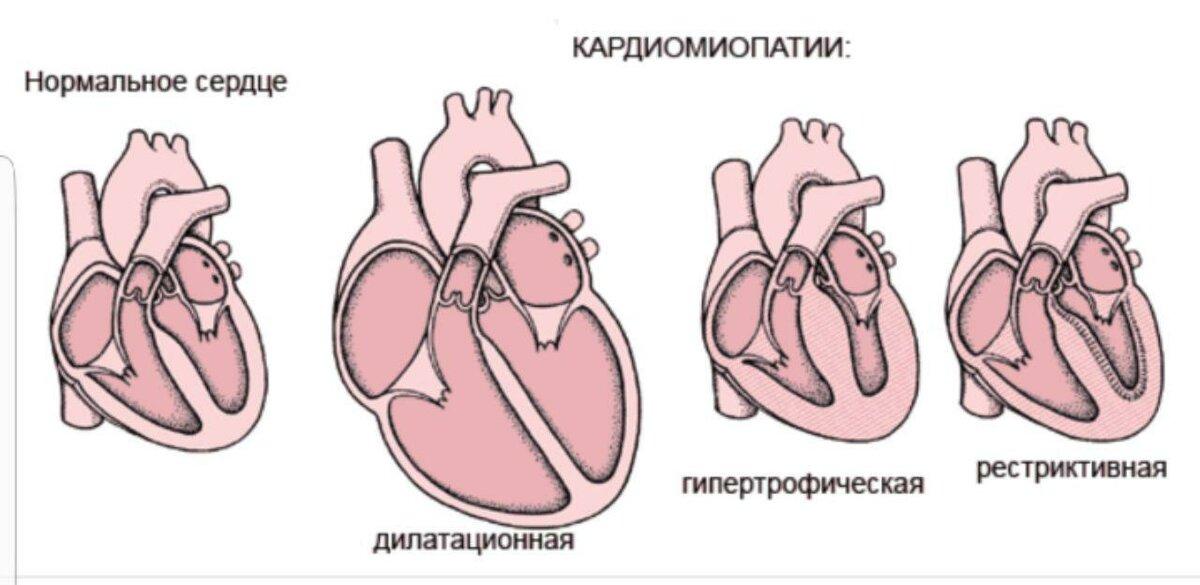 Дилатационная кардиомиопатия - описание болезни