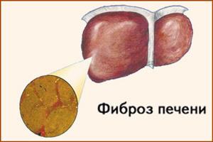Фиброз печени 2 степени: причины, симптомы, лечение и прогноз