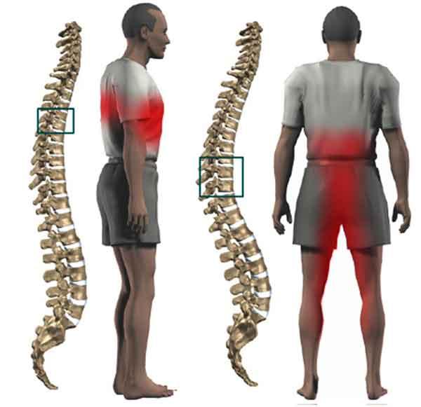 Вертеброгенная люмбалгия симптомы | спина доктор