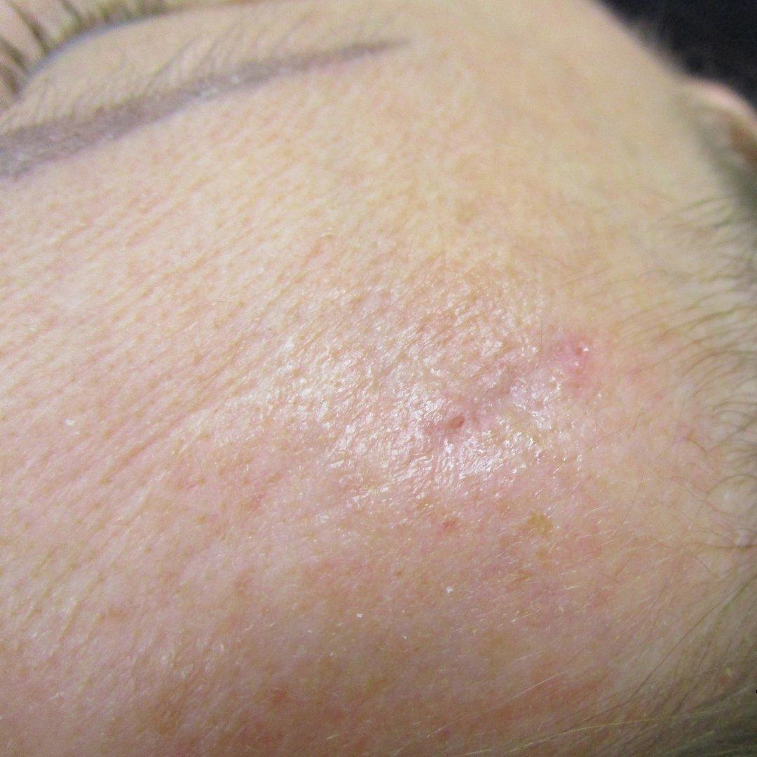 Атерома - что это такое и фото опухоли, причины появления, методы удаления