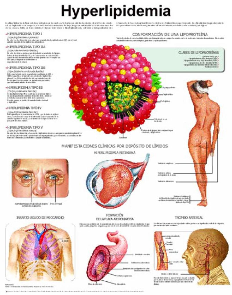 Гиперлипидемия – что это такое, симптомы, как лечить болезнь