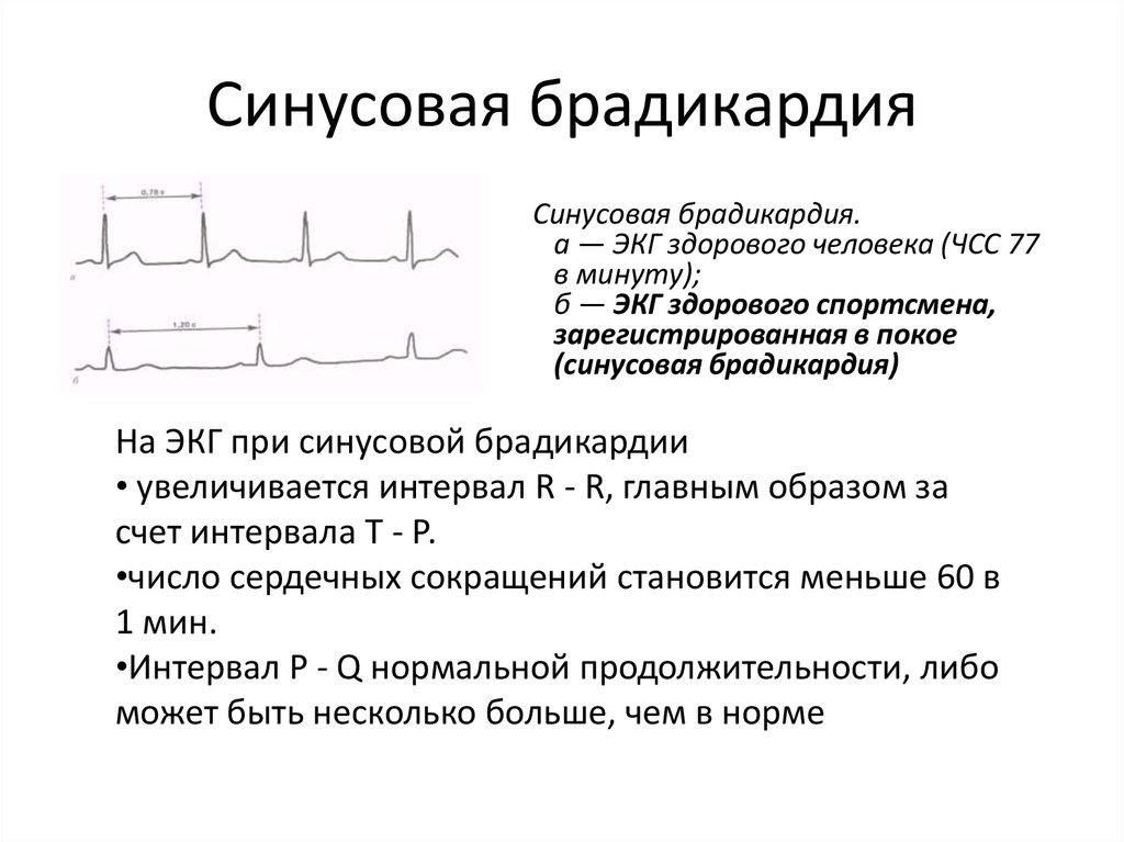 Брадикардия сердца лечение народными средствами - сердце в норме