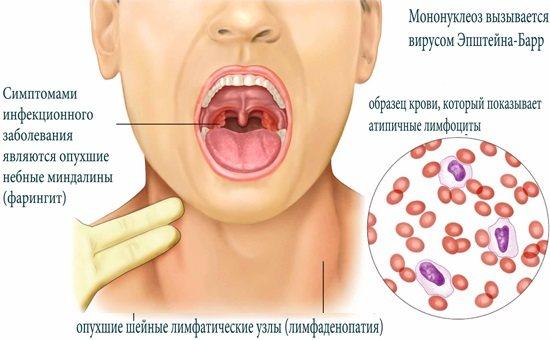 Вирус эпштейна барра у ребенка. симптомы, что это такое вэб, лечение, норма, прогноз, чем опасен, советы врачей, комаровского