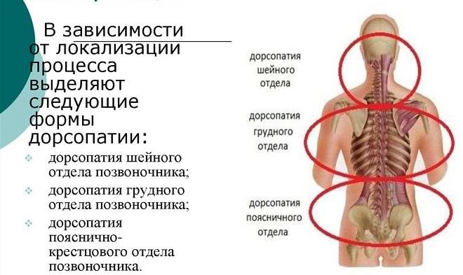 Дорсопатия позвоночника ▷ лечение, консультация в клинике медицина 24/7