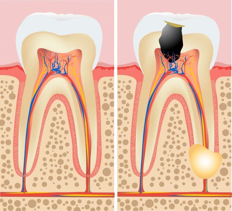 Симптомы кисты на корне зуба и ее лечение
