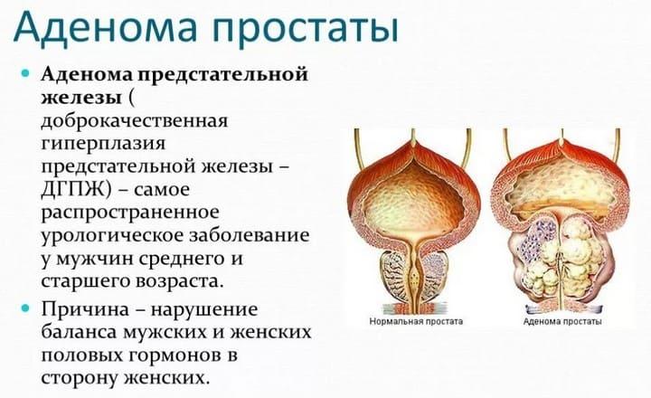 Что такое аденома простаты у мужчин - первые признаки и симптомы, лечение и профилактика