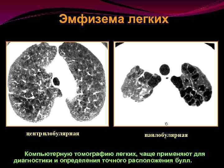 Эмфизема легкого. причины, симптомы, признаки, диагностика и лечение патологии.