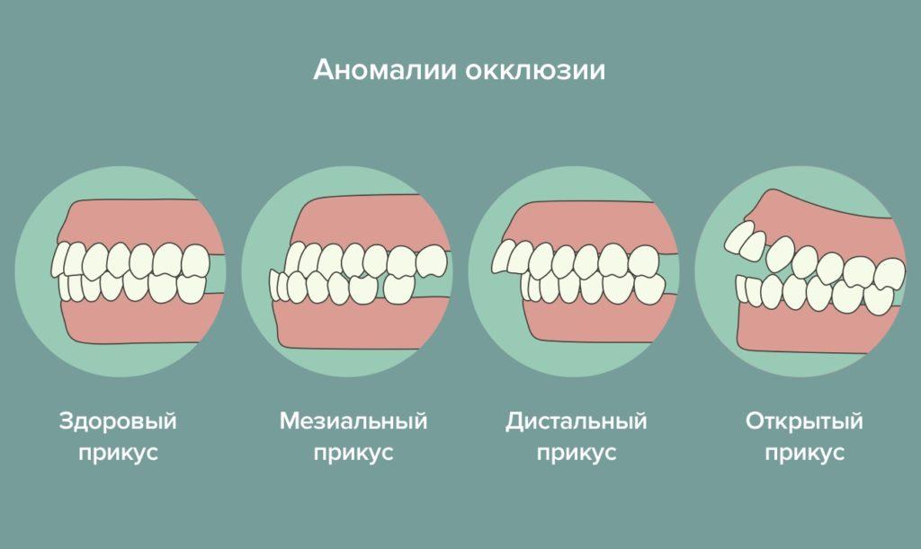 Прикус зубов: виды у человека, что это такое в стоматологии, какие бывают