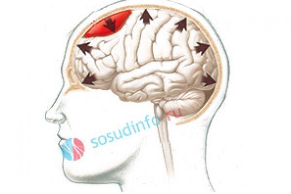 Причины и последствия отека головного мозга