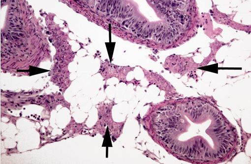 Диффузные изменения поджелудочной железы: что это такое, умеренные симптомы и выраженные признаки, эхопризнаки, лечение, медикаменты, народные средства