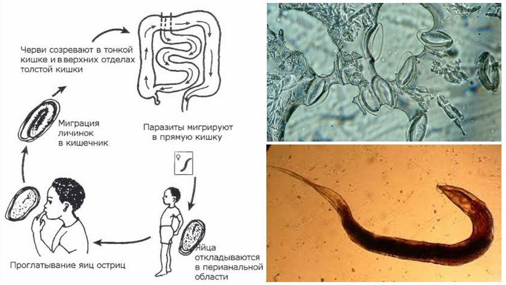 Энтеробиоз, что это такое? симптомы, причины и лечение
