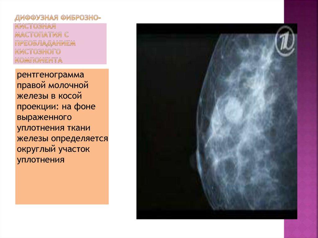 Диффузная фиброзная мастопатия: лечение, признаки и диагностика