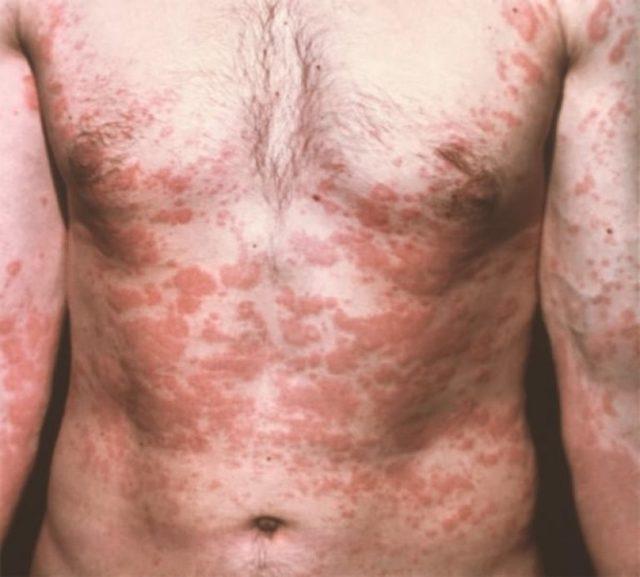 Описторхоз — что это такое? симптомы, диагностика и лечение