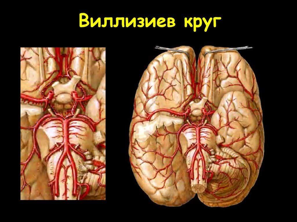 Виллизиев круг разомкнут что это такое, последствия для головного мозга
