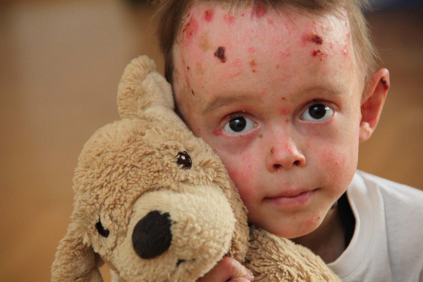 Болезнь бабочки или беллезный эпидермолиз. что это за болезнь, чем опасна и как помочь ребёнку.