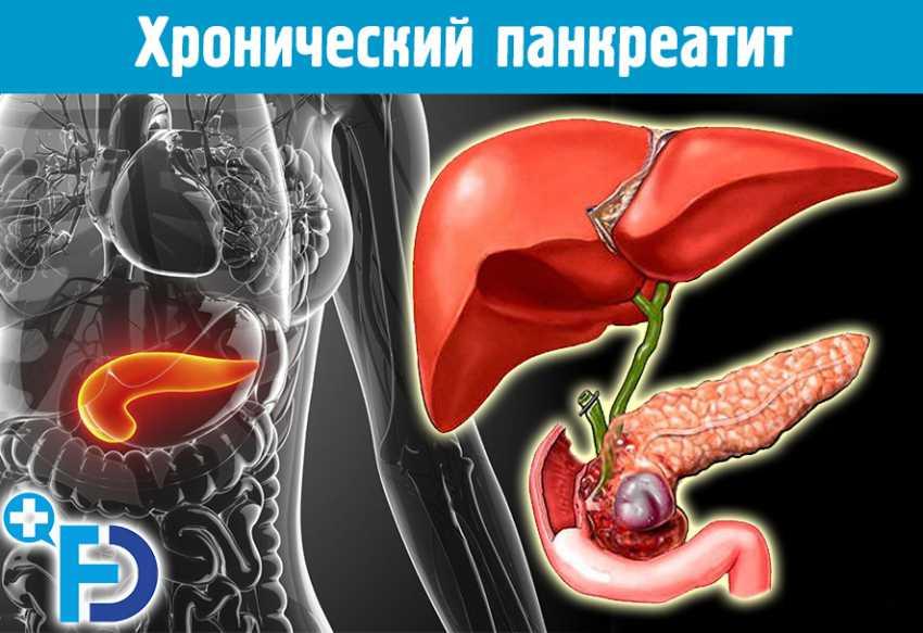 Стеаторея лечение