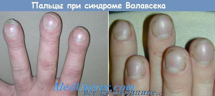 Онихолизис - причины и лечение ногтевой пластины