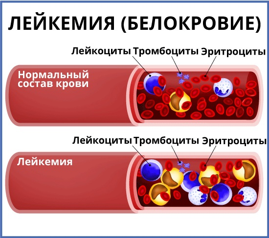 Лейкоз (рак крови) - признаки, симптомы, причины, диагностика и способы лечения заболевания