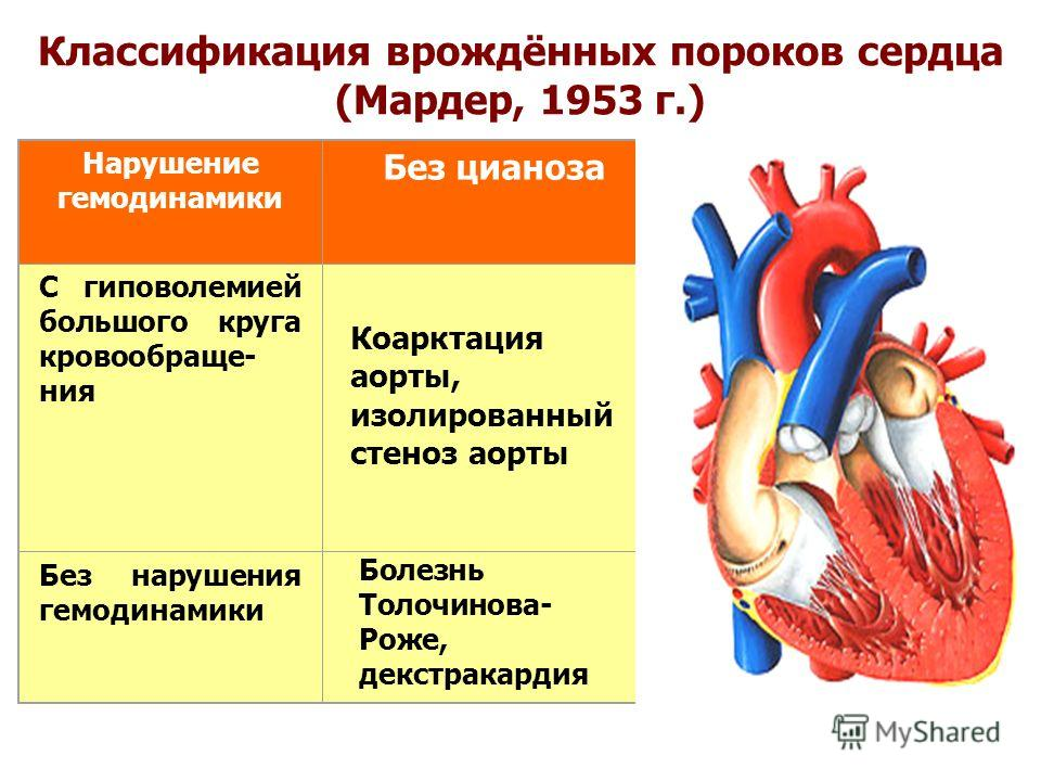 Что такое порок сердца у взрослых