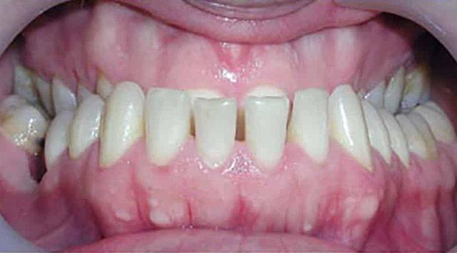 Виды прикусов зубов у человека: классификация и способы определения
