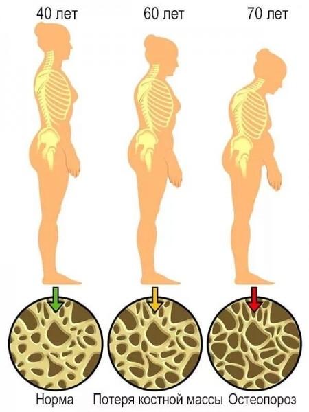 Остеопороз — симптомы и лечение, полное описание заболевания