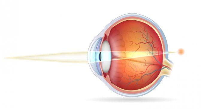 Гиперметропия слабой степени одного или обоих глаз: что это такое