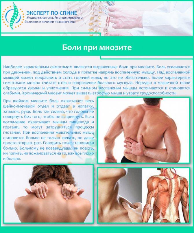 Как определить миозит: симптомы и первые признаки