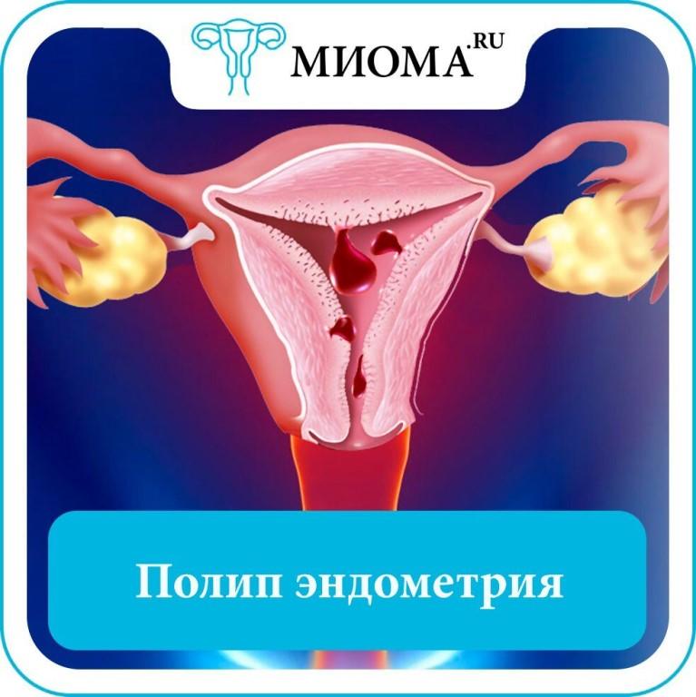 Какие существуют виды полипов в матке: классификация по месту локализации и методы лечения