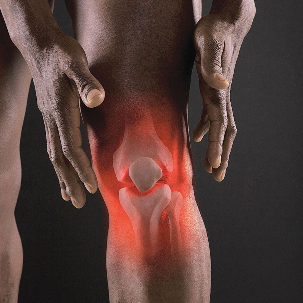 Артралгия: симптомы и лечение у взрослых и детей