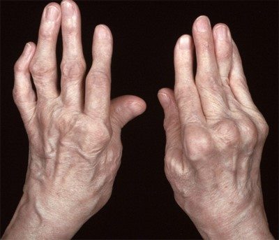 Полиартрит: что это, причины, симптомы и лечение