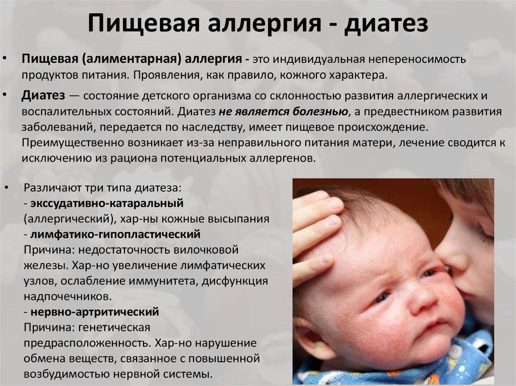 Мочекислый диатез у женщин, мужчин и детей: симптомы, лечение
