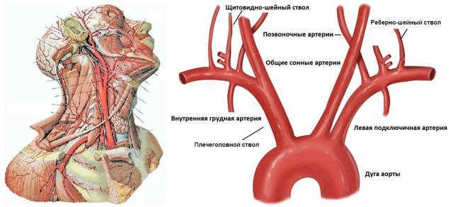 Ультразвуковая допплерография брахиоцефальных артерий что это - ососудах