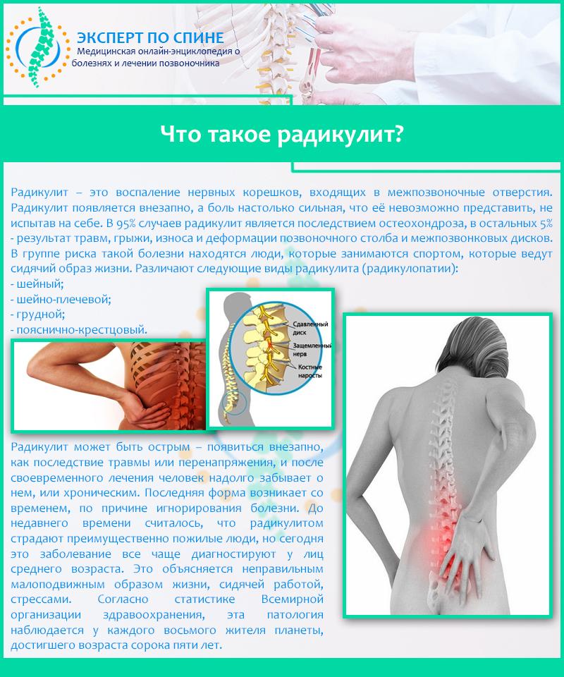 Радикулопатия шейного, грудного и пояснично крестцового отдела позвоночника, дискогенная радикулопатия в клинике цэлт.